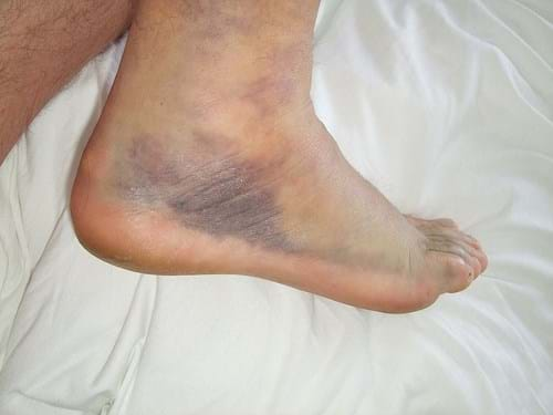 Rolled Ankle Sports Physiotherapy Myotherapy Melbourne