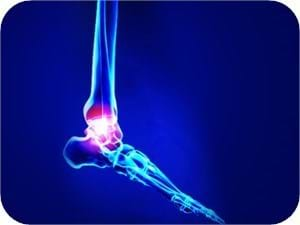 Sprained Lateral Ankle Treatment Physiotherapy Best Care Melbourne
