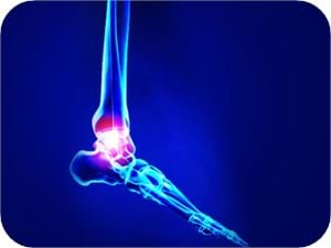 Ankle & Foot Physiotherapy Melbourne